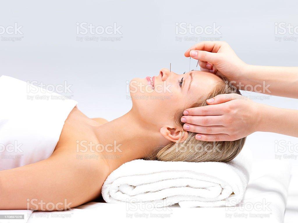 Acupunctura Uma Mulher bonita no spa - fotografia de stock