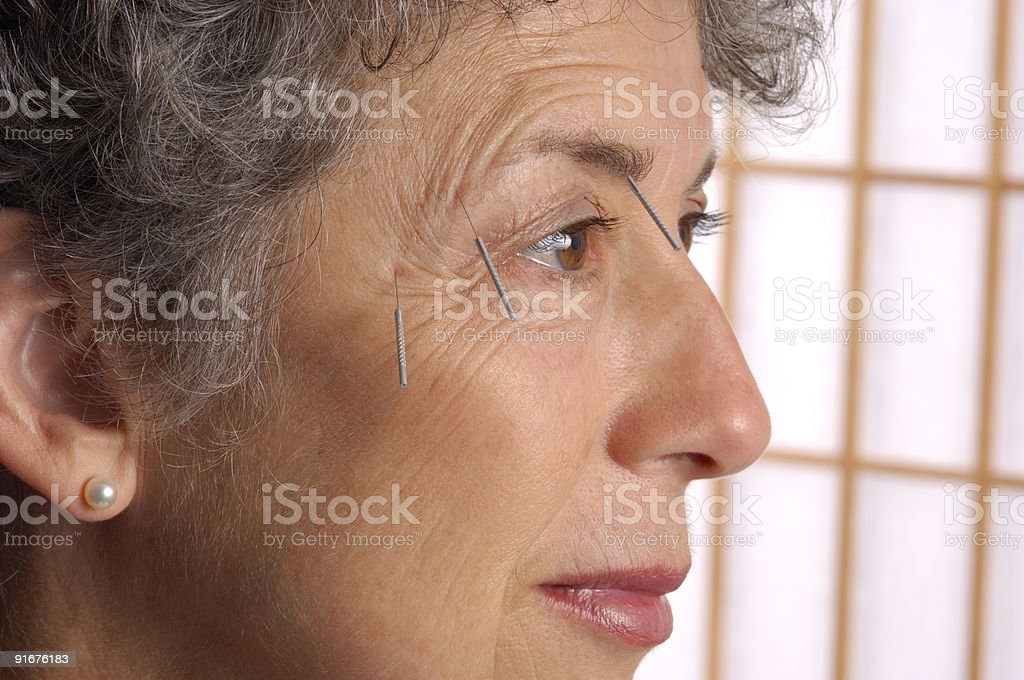 Acupuncture On Brow Of Woman stock photo
