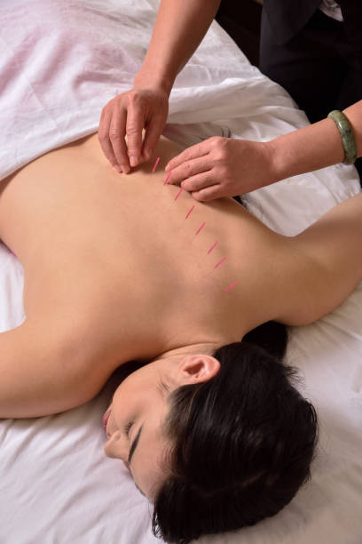 Acupuncture on Spine hands on top view – Foto