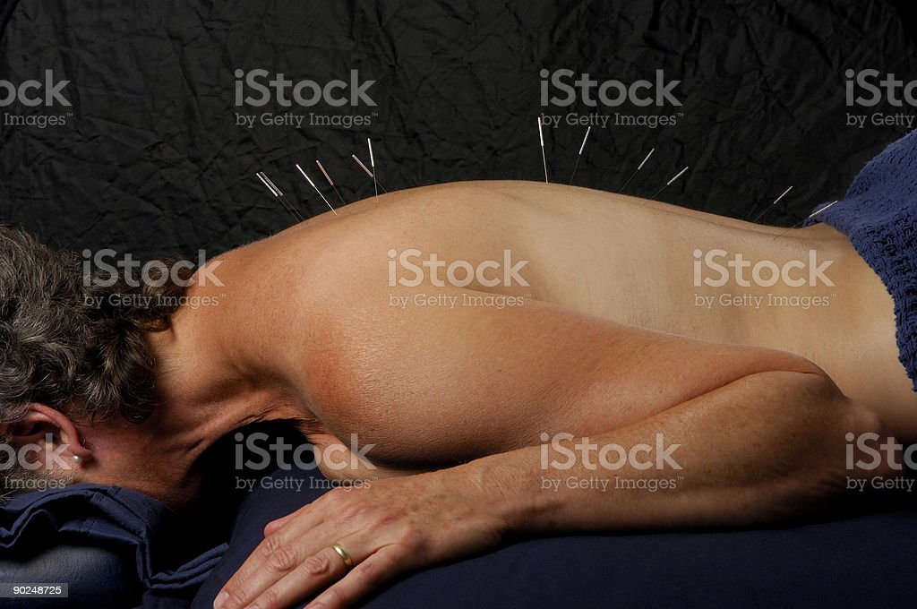 Acupuncture on Spine stock photo