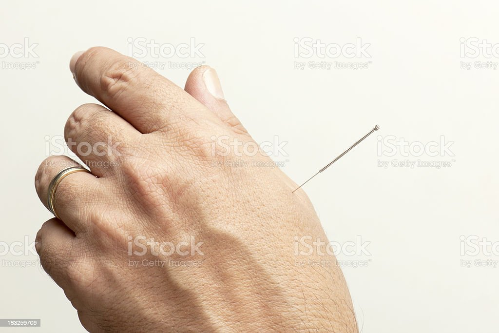 acupuncture royalty-free stock photo