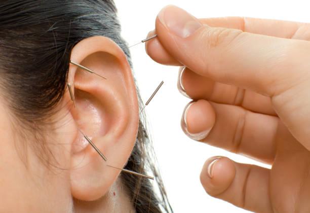 Acupunctuur foto