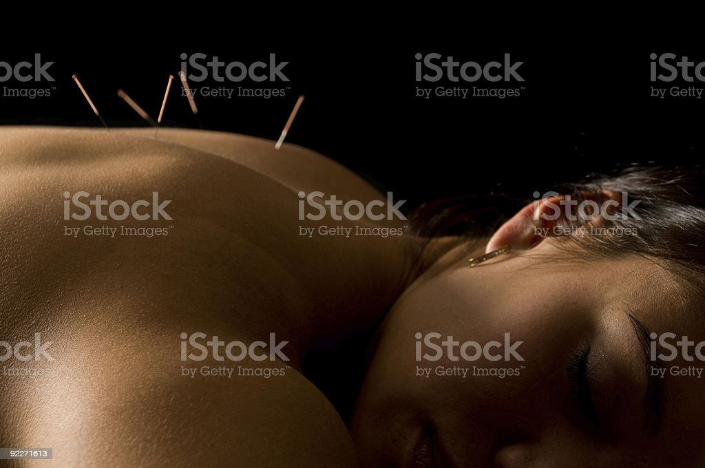 Akupunktur – Foto