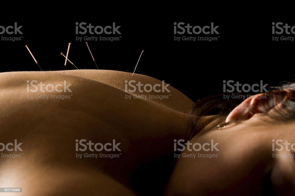 Acupunctura - fotografia de stock
