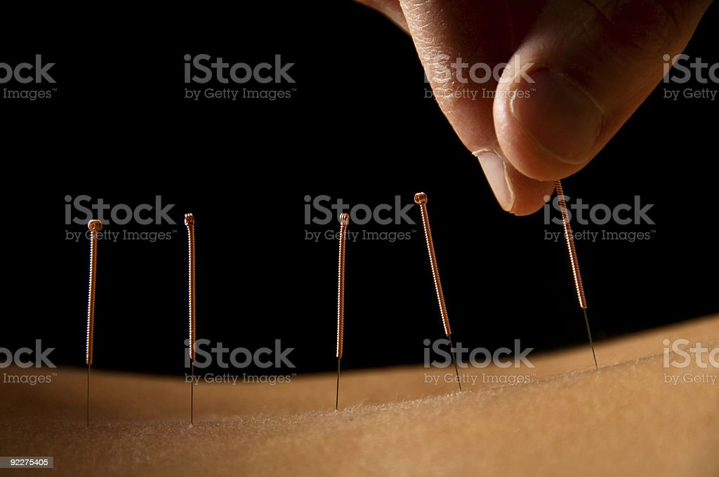 Acupuncture stock photo