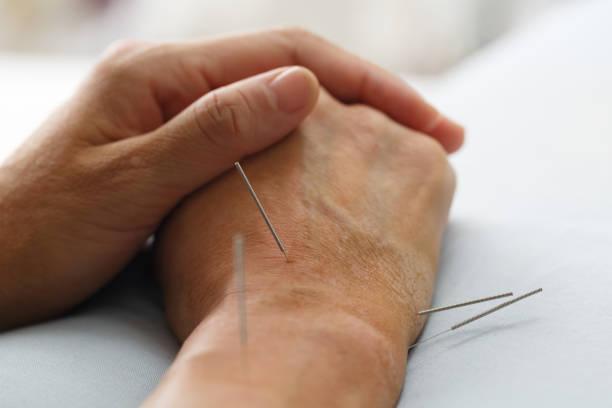 modèle d'acupuncture - acupuncture photos et images de collection