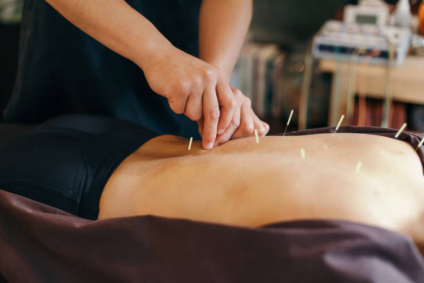 Acupuncture session in a Japanese medical study stock photo
