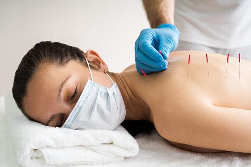 para que sirve la acunpuntura