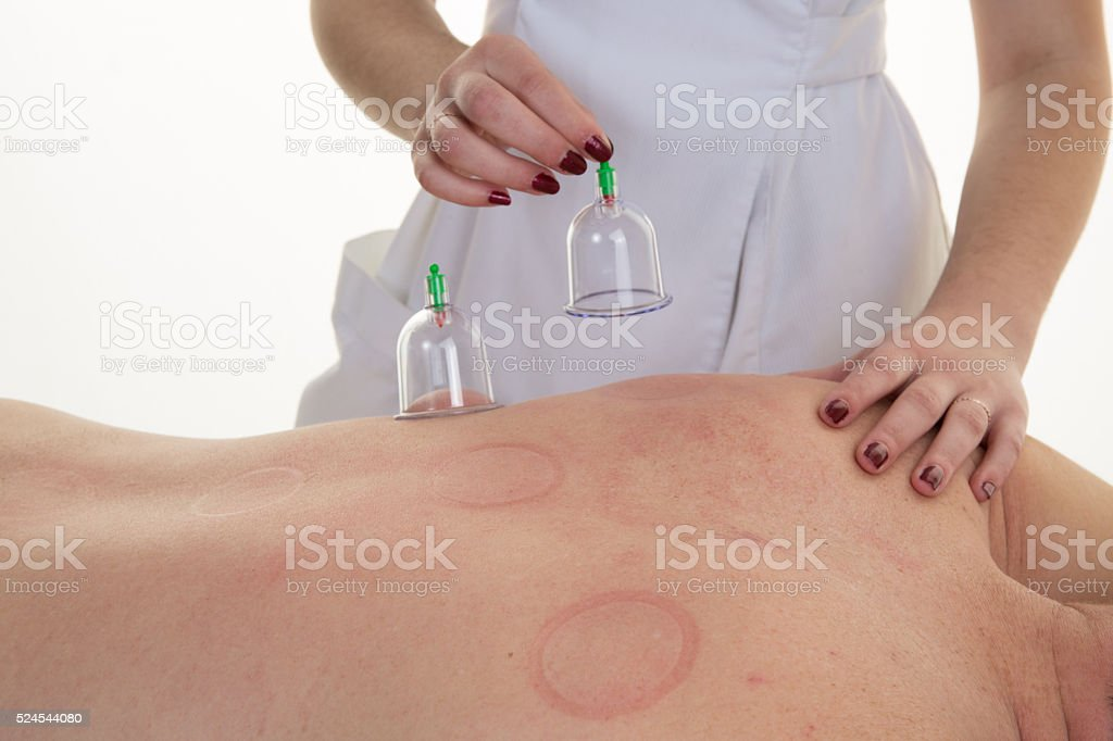 Acupuncture Therapist Placing Cup On The Back stock photo