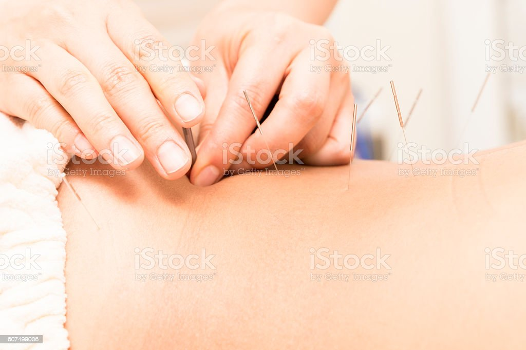 Acupuncture to the waist of oriental women stock photo