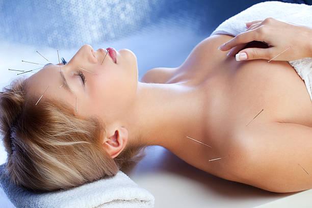 trattamento di agopuntura - china drug foto e immagini stock