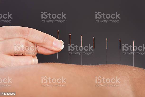 Free acupuncture Images, Pictures, and Royalty-Free Stock Photos