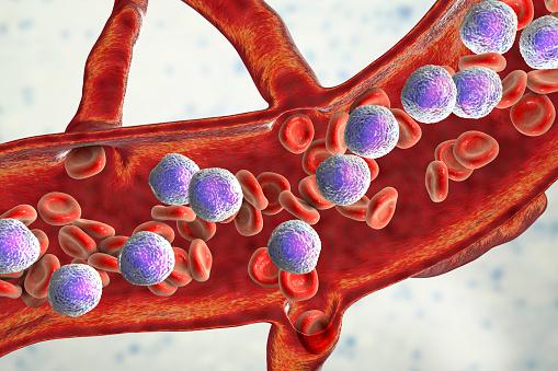 istock Acute lymphoblastic leukemia 1076114484