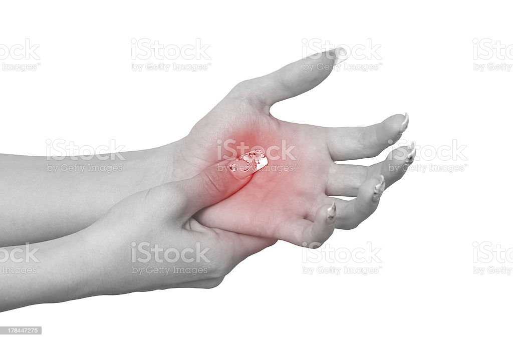 Acute pain in a woman palm royalty-free stock photo