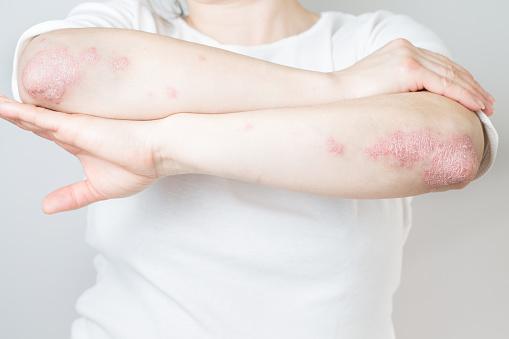 acute-psoriasis-on-elbows-is-an-autoimmune-incurable-dermatological-picture-id1219454164?b=1&k=6&m=1219454164&s=170667a&w=0&h=-kg_C3WkHCyZZT_qtVfTrH2KPjrjqdwXLe89f1DRfU4=