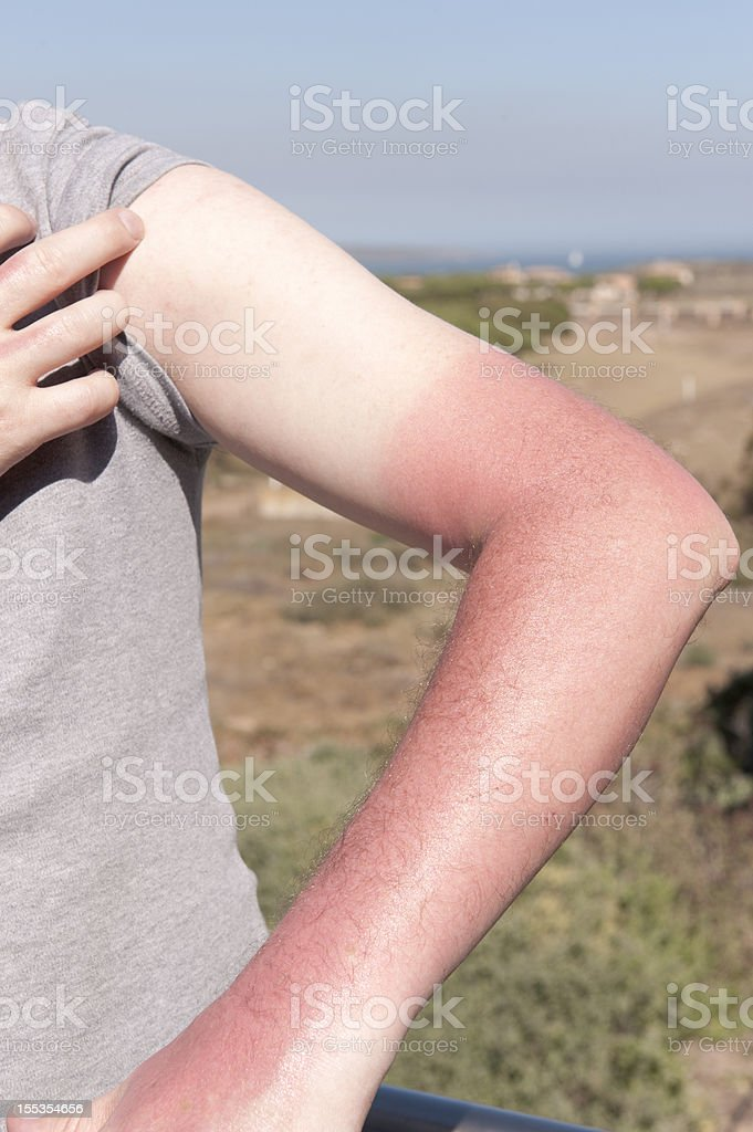 Acute Sunburn stock photo