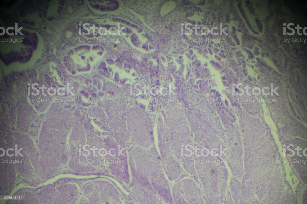 Adenomyosis biopsy under light microscopy stock photo