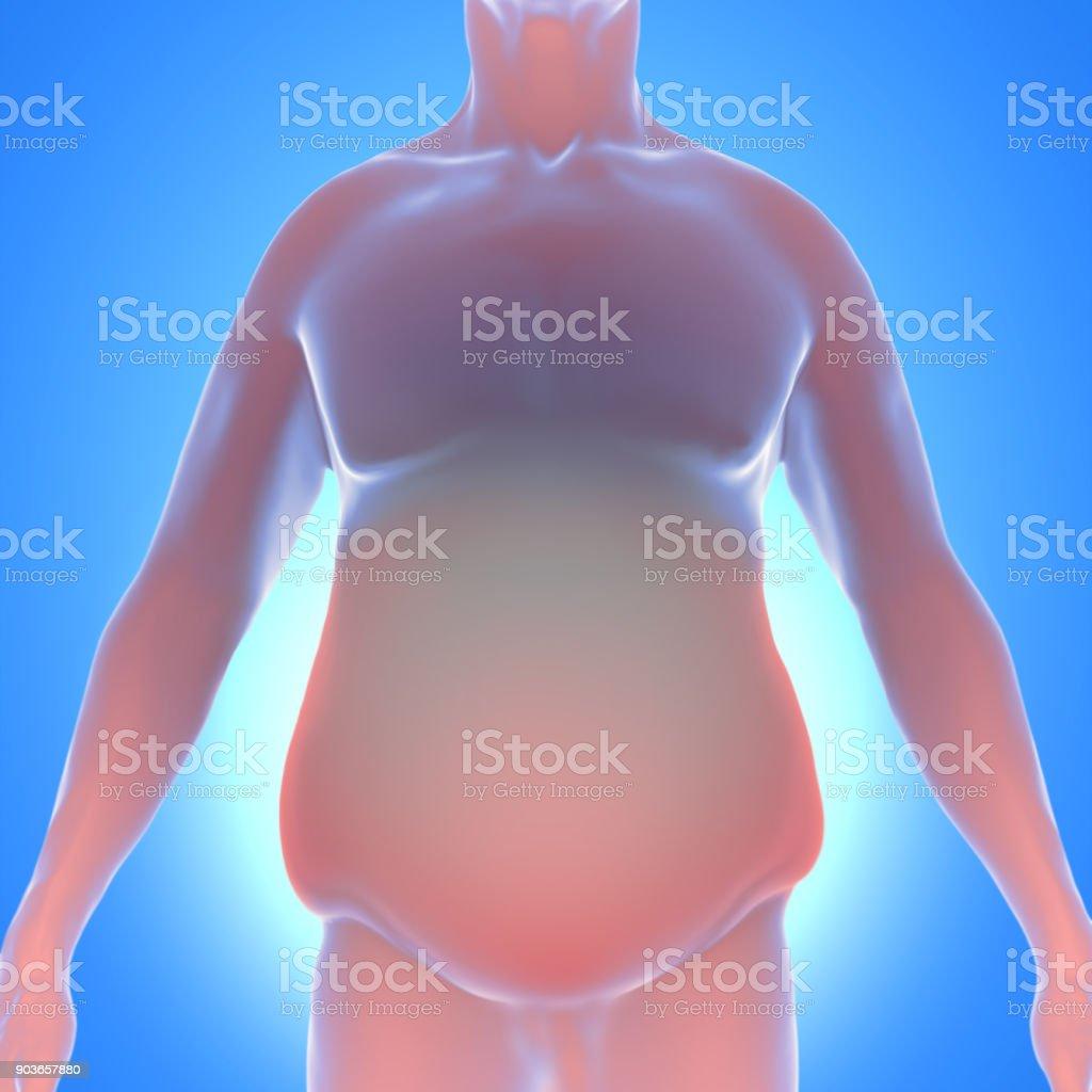 Adipositas - Übergewicht – Foto