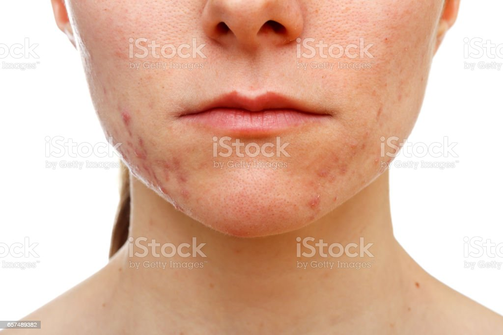 Adolescent girl suffering in acne stock photo