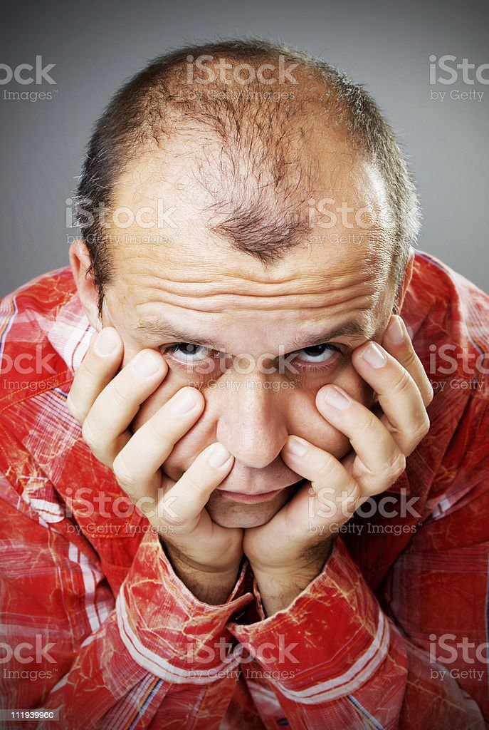 Adult man losing hair royalty-free stock photo