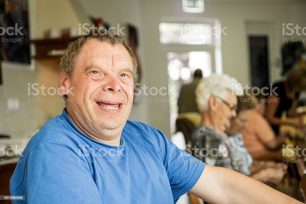 Adult Man Portrait with a Down Syndrome stock photo