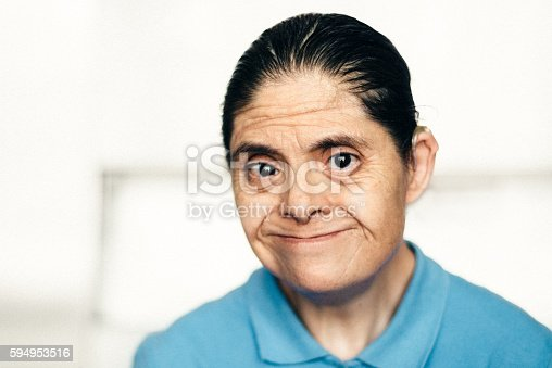 594475880istockphoto Adult Mexican woman with down syndrome 594953516