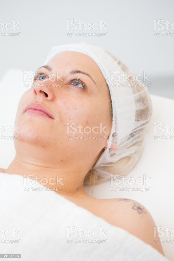 Adult Woman At Acne Removal Therapy stock photo