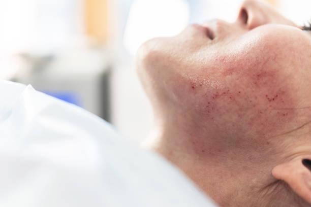 Mulher adulta tendo Mesoterapia fracionária - foto de acervo