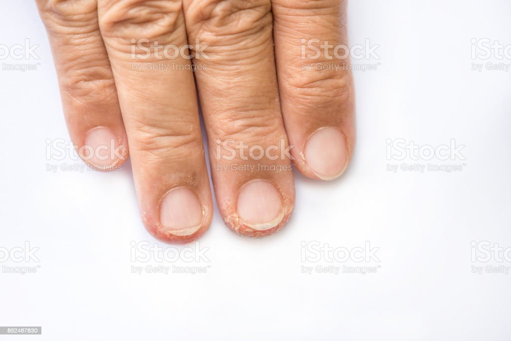 Advanced Stage Of Dyshidrosis On Fingerscracked And Peeling Skin ...