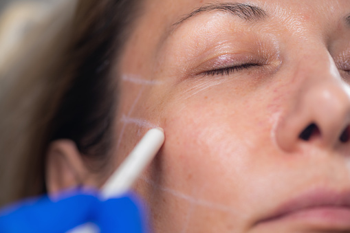 istock Aesthetic Mesotherapy Thread Face Lifting. Anti-aging Cosmetic Treatment 1188858345