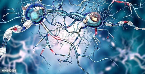 istock Affected Nerve cells, concept for Neurological Diseases,tumors,brain surgery. 610655566