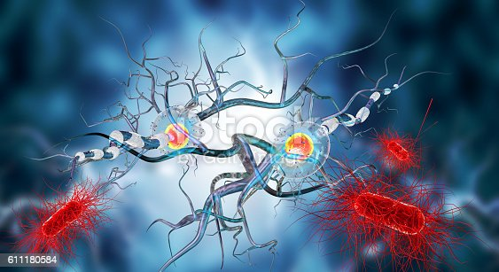 istock Affected Nerve cells, concept for Neurological Diseases,tumors,brain surgery. 611180584