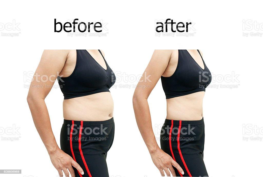 Dopo una dieta - foto stock