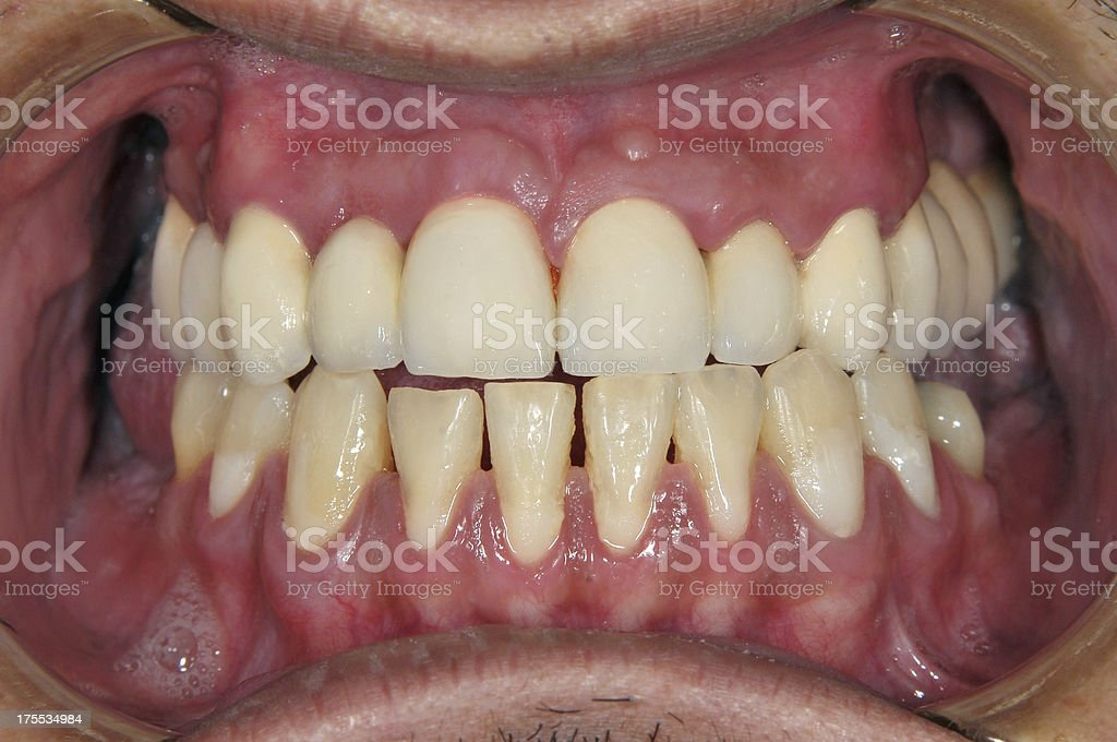 After Full Dental Reconstruction stock photo
