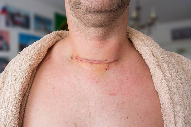 depois de operação - cancer da tireoide - fotografias e filmes do acervo