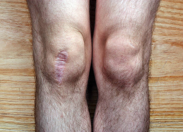 after surgery knee - open wounds stock photos and pictures