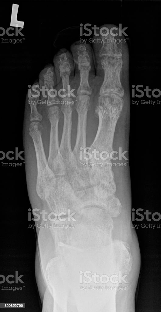 After treatment with Herbert screw - x-ray. stock photo
