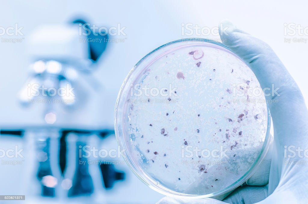 Agar plate full ofmicro bacterias and microorganisms stock photo