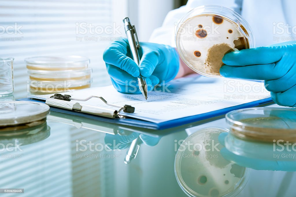 Agar plate with growing germs stock photo