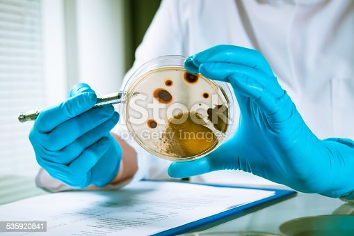 istock Agar plate with growing germs 535920841