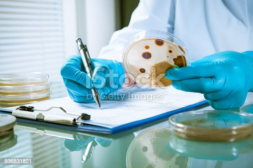 istock Agar plate with growing germs 536831821