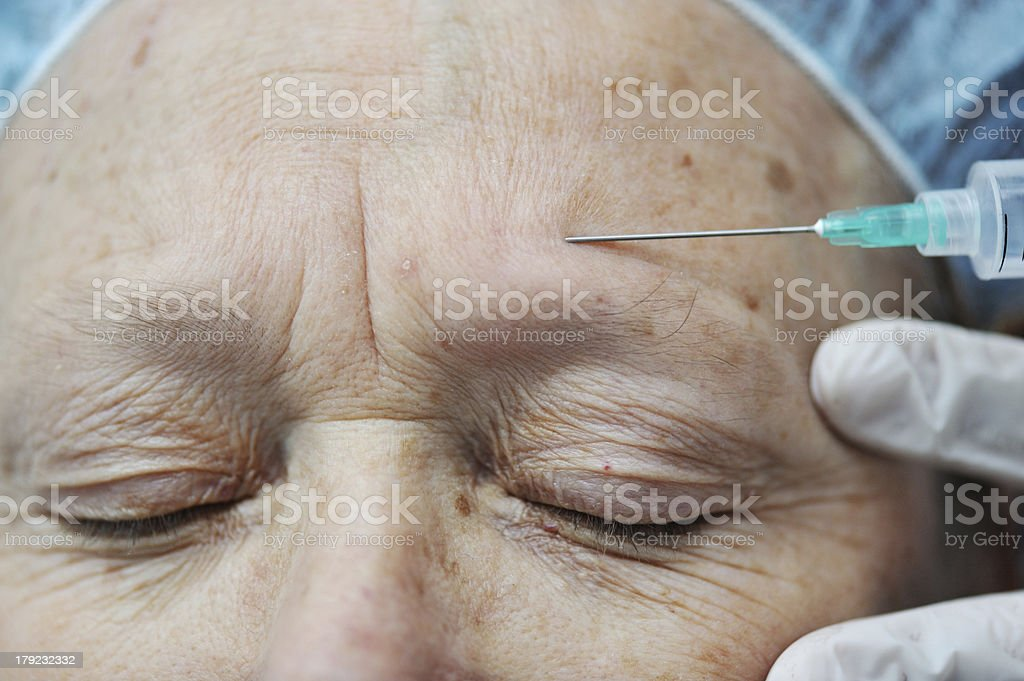 Aged female receiving botox injection in forehead royalty-free stock photo