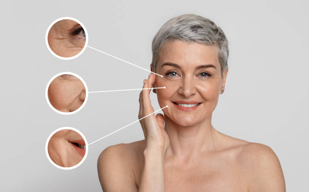 Aged Skin Care. Collage of beautiful mature woman with zoomed wrinkles zones stock photo