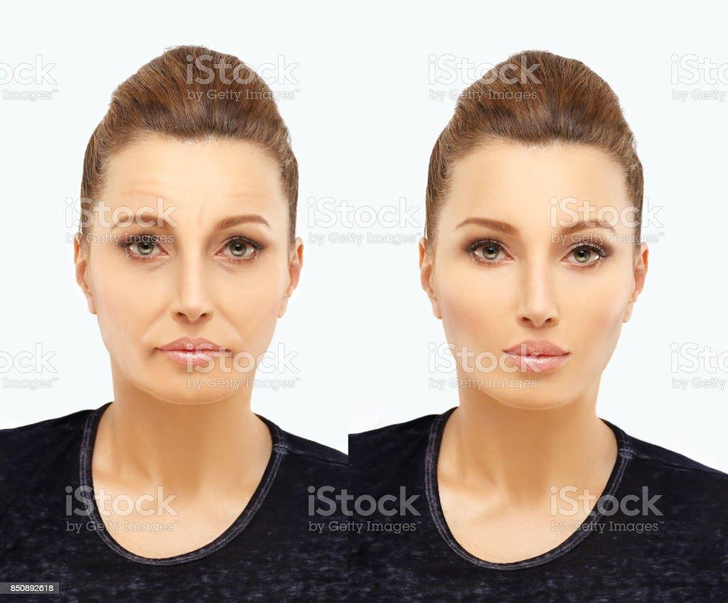 Hautalterung.   Ältere Frau-Junge Frau.   – Foto
