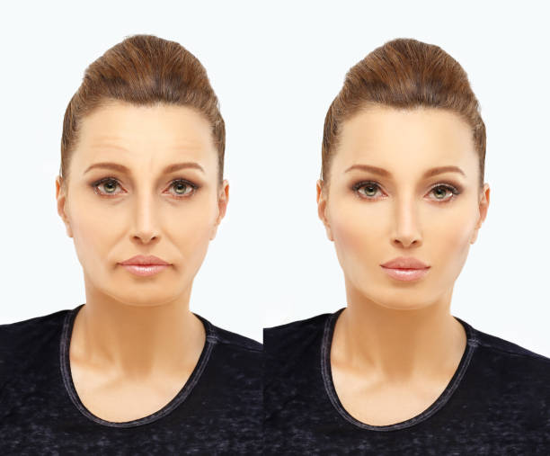 aging. mature woman-young woman. - eyelid stock photos and pictures