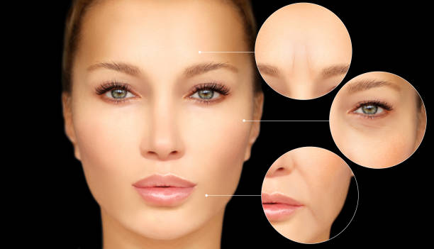 Aging. Mature woman-young woman.Blepharoplasty.Lower-eyelid blepharoplasty (Upper-eyelid blepharoplasty ) stock photo