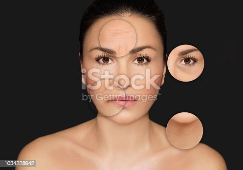 istock Aging. Mature woman-young woman.Face with skin problem 1034228642
