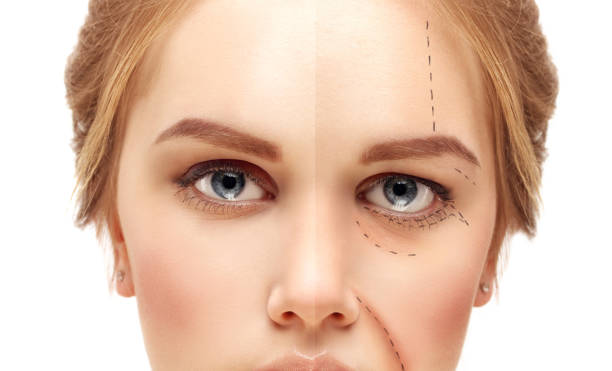 cause and effect getting plastic surgery