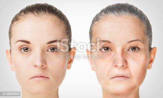 istock Aging process, rejuvenation anti-aging skin procedures 515805834