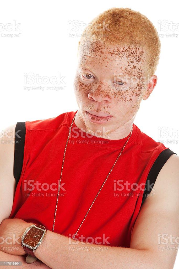 Albino Man stock photo